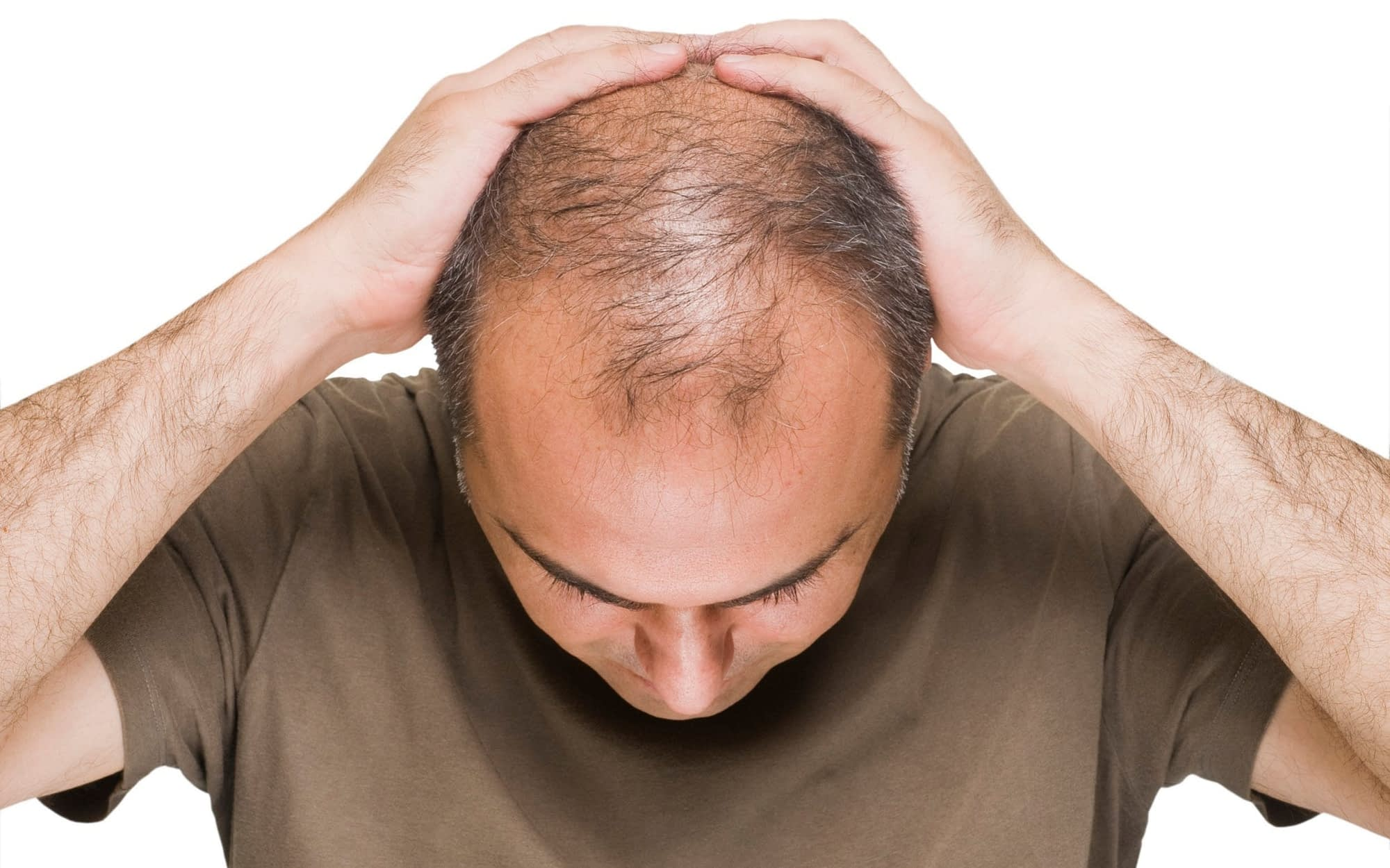 male hair loss receding hairline