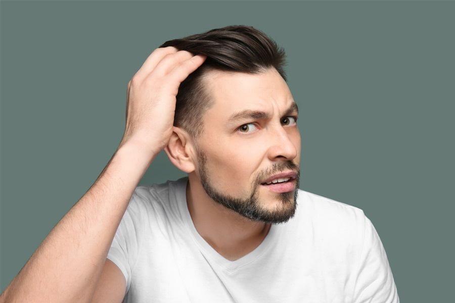 guy thinning hair