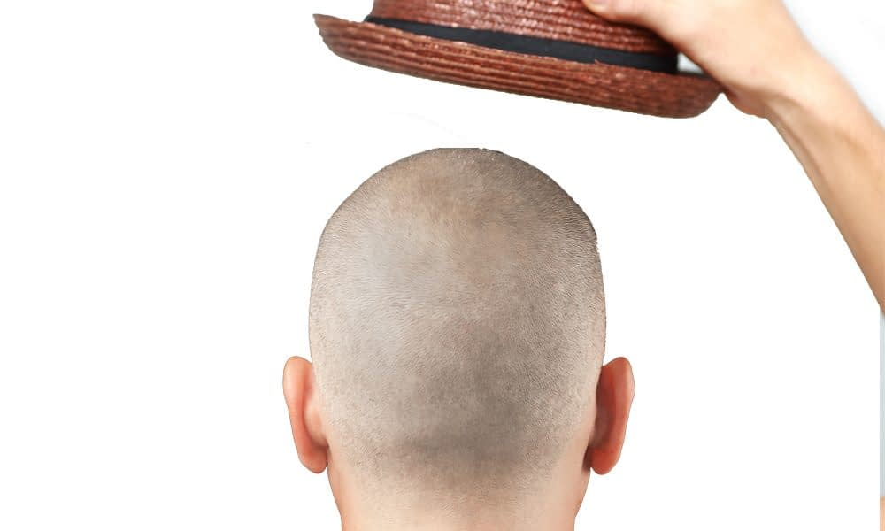 scalp micropigmentation patient from behind head