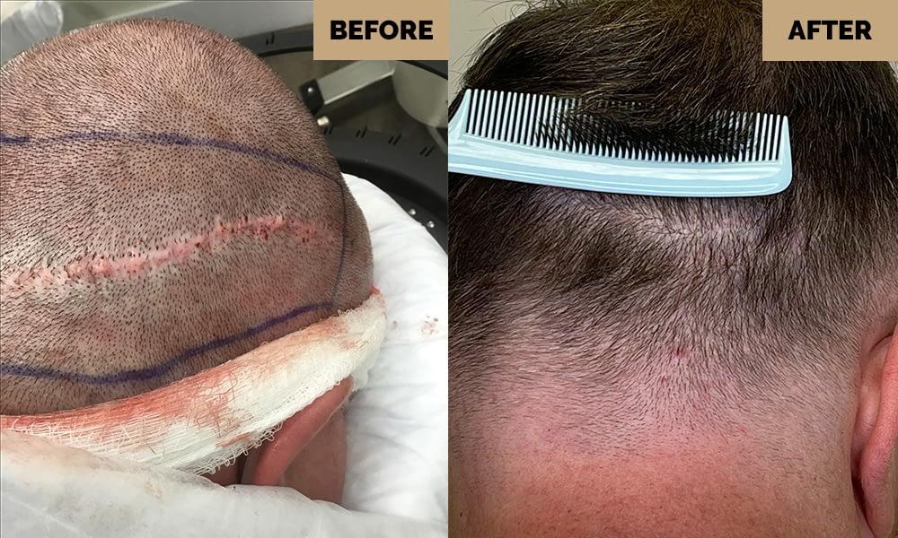 strip scar repair
