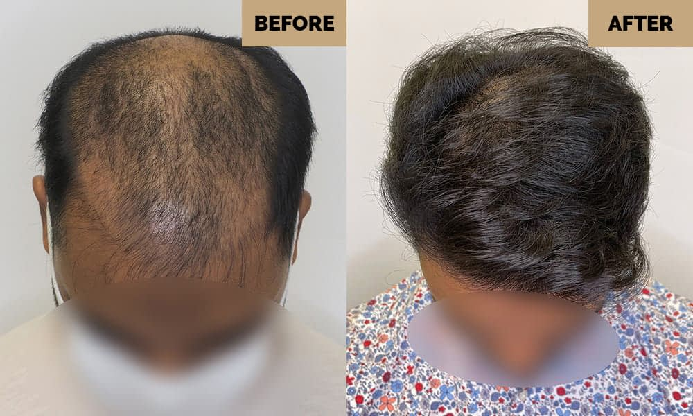 manual fue before and after