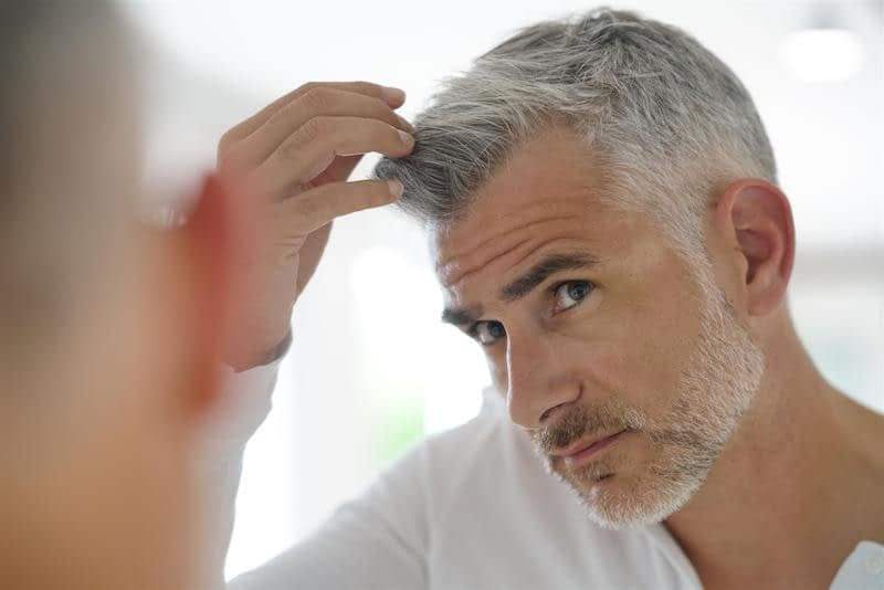 male hair loss concerned